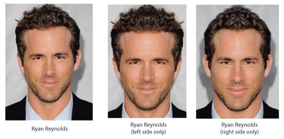 Facial Symmetry Surgery 86